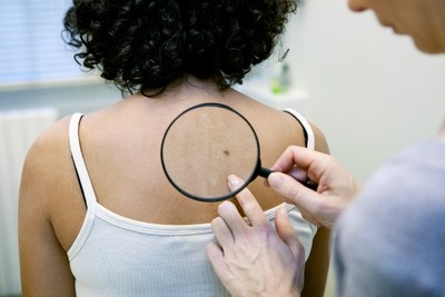 A doctor inspects a patient's skin for atypical moles